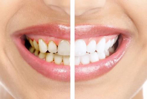 АКЦИЯ Отбеливание зубов