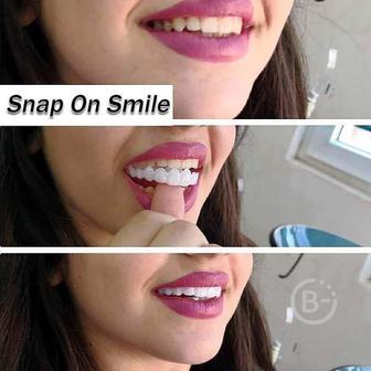 Виниры Snap-On-Smile