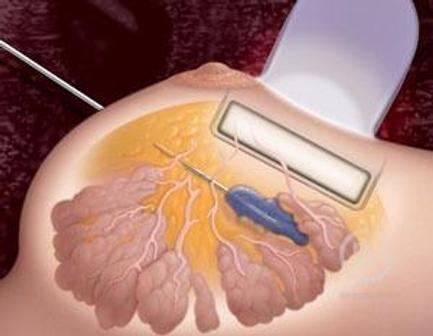 Трепан-биопсия молочной железы