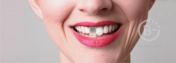 Выгодное предложение на имплантацию после удаления зуба!
