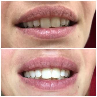 Super отбеливание зубов