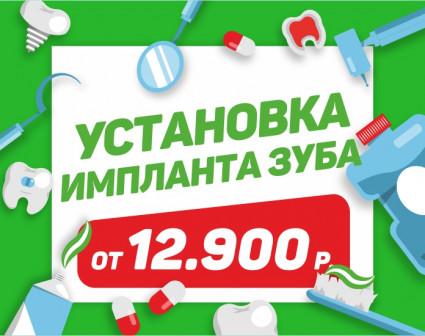 Установка импланта от 12.900 рублей