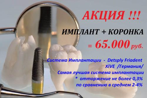 Имплантация - Detsply Friadent XiVE под ключ = 65.000 рублей.