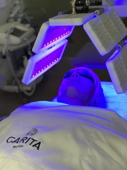 ФОТОДИНАМИЧЕСКАЯ терапия на аппарате Heleo4 теперь в Expert Carita