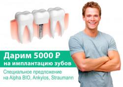 Дарим 5000 рублей на имплантацию зубов