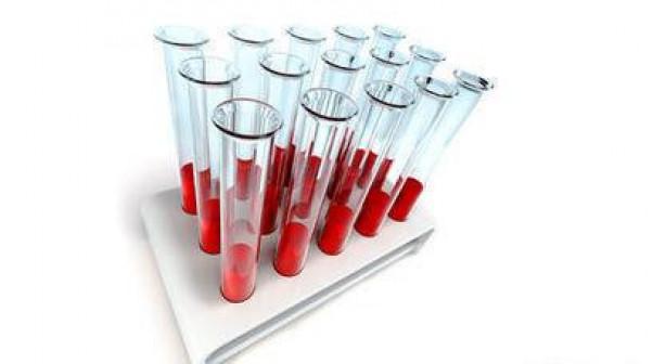 Биохимический анализ крови Триглицериды
